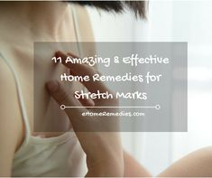 11 Amazing & Effective Home Remedies for Stretch Marks