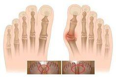 ¿Qué es un Juanete o Hallux Valgus? Bunion Exercises, Tailors Bunion, Bunion Pads, Bunion Surgery, Gel Toe Separators, Podiatry, Foot Pain, Feet Care, Pain Relief