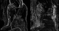 Ερευνητές ανακάλυψαν το κρυφό έργο ενός άλλου ζωγράφου κάτω από πίνακα του Πικάσο! #ΤΕΧΝΟΛΟΓΙΑ