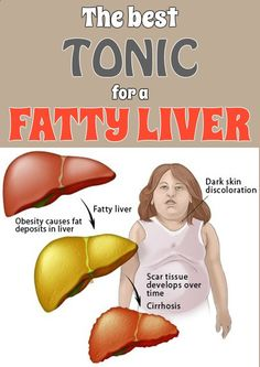 The best tonic for a fatty liver
