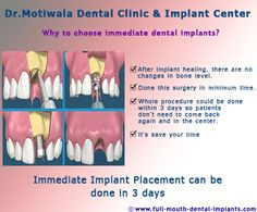 #Immediate Implant Placement can be done in 3 days Immediate Implant Placement are such a procedure when the tooth is removed and at the Same Day Dental Implants are placed. This procedure is considered as a standard way of preventing any changes in shape of bone and gum near the extracted tooth. In one intervention whole surgical treatment could be completed. http://full-mouth-dental-implants.com/immediate-implant-placement.php