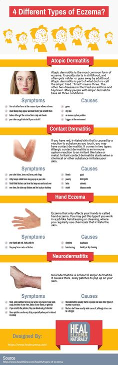 This infographic was created by Heal Eczema Naturally. The most common type of eczema is Atopic Dermatitis, But there a number of different types of eczema that affect people in many different ways. In this infographic, well show you the number of different types of eczema, the most common of which we will discuss throughout the infographic.