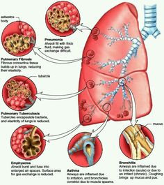 The respiratory system thorax volume diagram with attached restrictive lung disease figure common bronchial and pulmonary diseases exposure to ccuart Choice Image