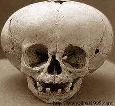 weird skulls found in peru - Google Search