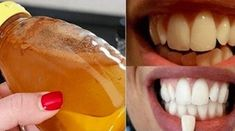 Gargle With This Simple Ingredient And See What Happens To Your Teeth! (Gargle With This Simple Ingredient And See What Happens To Your Teeth! Teeth Whitening Remedies, Natural Teeth Whitening, Whitening Kit, Oral Health, Health Tips, Teeth Health, Dental Health, Teeth Care, White Teeth