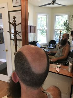 Bald Hair, Male Pattern Baldness, Special Effects, Shaving, Short Hair Up, Close Shave