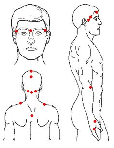 Acupressure points to relieve headaches. Includes a list of other conditions and their corresponding acupressure points