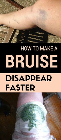 Learn how to make a bruise disappear faster.
