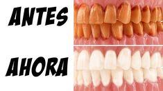 Los dentistas no quieren que sepas este truco para eliminar el sarro y b...