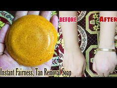 Instant Fairness, Tan Removal Homemade Soap||100%work for skin whitening|| live result||Myself Riya - YouTube Beauty Make Up, Diy Beauty, Dark Neck Remedies, Circle Mehndi Designs, Skin Whitening Soap, Hair Fall Control, Tan Removal, Baby Skin Care, Natural Health Remedies