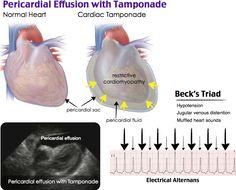 Pericardial Effusion with Tamponade Cardiac Nursing, Nursing Mnemonics, Cardiac Sonography, Pericardial Effusion, Cardio, Human Body Facts, Regenerative Medicine, Emergency Medicine, Nursing Notes