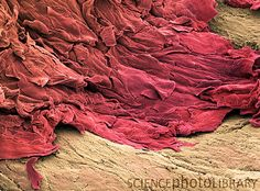 SEM of keratinocytes (red) at the site of a skin wound. Keratinocytes are skin cells that contain the protein keratin. They migrate to the site of a wound and form accumulating layers that form the hard protective object called a scab. Scanning Electron Microscope, Fearfully Wonderfully Made, Microscopic Images, Macro And Micro, Things Under A Microscope, Medical Science, Anatomy And Physiology, Microbiology, Patterns In Nature