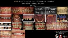 AIOP INTERNATIONAL PROSTHODONTIC CONTEST: Case by Dr. Costanza Micarelli, Italy.