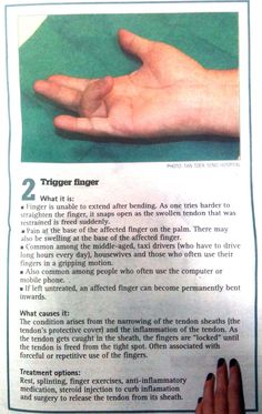 trigger finger exercises | trigger finger treatment in singapore what it is finger is