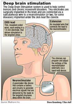 A leading treatment in Movement Disorders. An unfortunate failure for us. Essential Tremors, Deep Brain Stimulation, Epilepsy Awareness, Brain Health, Alzheimer's Brain, Mental Health, Alzheimer's And Dementia, Neuroscience, Neuroplasticity