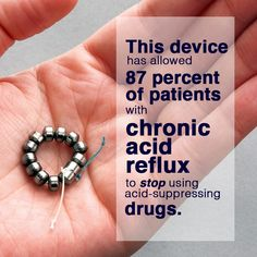A bracelet-like device with magnetic beads can control the chronic digestive disorder gastroesophageal reflux disease, according to a study published online in the New England Journal of Medicine.