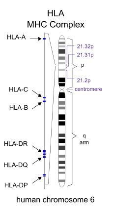 The human leukocyte antigen (HLA) system is the locus of genes that encode for proteins on the surface of cells that are responsible for regulation of the immune system in humans. This group of genes resides on chromosome 6, and encodes cell-surface...
