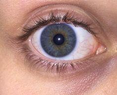 fuck yeah, heterochromia. : Photo