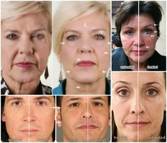 A premier anti-aging company committed to providing quality skin care and nutrition products. Its unique ageLOC science addresses aging at its source. Galvanic Facial, Ageloc Galvanic Spa, Skin So Soft, Smooth Skin, Complete Nutrition, Beauty Hacks, Beauty Tips, Beauty Products, Face And Body