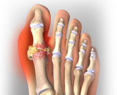 food uric acid high how to treat gout wikihow treatment for gout apple cider vinegar
