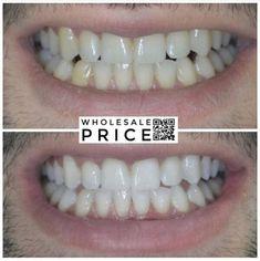 AP24 Whitening Fluoride Toothpaste by Nu Skin | Cost Price & Reviews Ap 24, Whitening Fluoride Toothpaste, Nu Skin, Cavities, Teeth, Dental Caries, Dental, Tooth