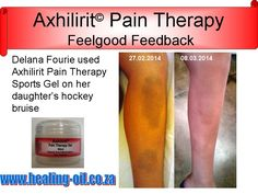 Delana Fourie from Cape Town used Axhilirit Pain Therapy Sports Gel on her daughter's hockey bruise. www.healing-oil.co.za Sports Gel, Muscle Strain, Sprain, Cape Town, Arthritis, Feel Good, Hockey, The Balm, Therapy