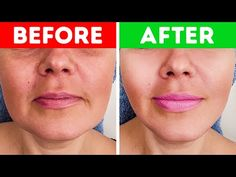 Your facial muscles start to sag with time. What Korugi massage does is tone your facial muscles and dissipate the fat under your skin. If you're a girl. Yoga Facial, Acne Facial, Facial Muscles, Facial Massage, Facial Care, Japanese Face Massage, Types Of Facials, Tighter Skin, Face Exercises