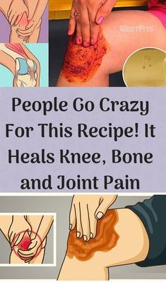 People Go Crazy For This Recipe! It Heals Knee, Bone and Joint Pain - Fitness Knee Bones, Knee Pain Relief, Shoulder Pain Relief, Muscle Pain Relief, Bone And Joint, Nerve Pain, Natural Home Remedies, Natural Healing, Natural Herbs