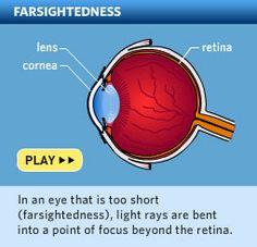 Farsightedness (hyperopia) symptoms, causes and treatments - AllAboutVision.com
