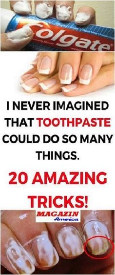 I NEVER IMAGINED THAT TOOTHPASTE COULD DO SO MANY THINGS CHECK THESE 20 AMAZING TRICKS