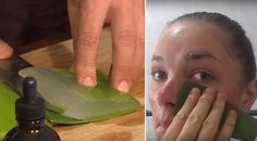 SHE RUBS ALOE VERA ON HER FACE FOR 7 DAYS, AND THE RESULTS ARE AMAZING!