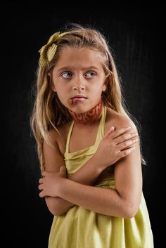 Verbal Abuse Is Abuse According To Bullyingstatisticscom The - Extremely powerful photo project shows effects verbal abuse