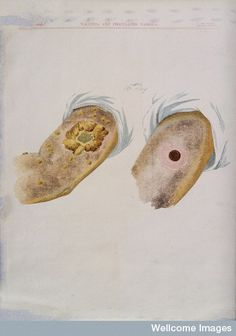 A comparison between smallpox and cowpox pustules on the 16th day of the disease. Chromolithograph, 1896, after G. Kirtland.