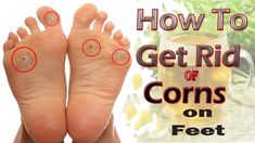 How to Get Rid of Corns on Feet Naturally at Home Dry Feet Remedies, Bunion Remedies, Natural Remedies, Homemade Frozen Yogurt, Frozen Yogurt Recipes, Corn On Toe, Corn Feet, Health Care, Health