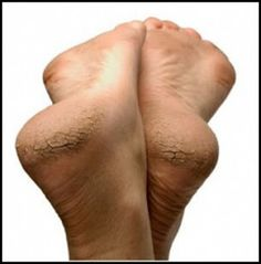 Home Remedies for Cracked Heels ~ The Medical Facts