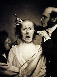Duchenne de Boulogne, 1856, and an assistant faradize the mimetic muscles of a live subject to demonstrate the mechanics of facial expression.