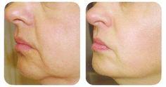 2 Ingrediente diga adiós a las arrugas y flacidez de la piel facial con esta…