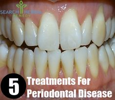 5 Treatments For Periodontal Disease | Search Herbal & Home Remedy