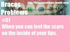 I have scars and ulcers the whole way along the back of my lips