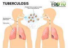 tuberculosis diagram