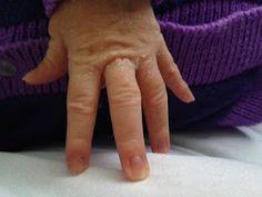 Como cortar las uñas a los bebés   Pregúntale a Kathy