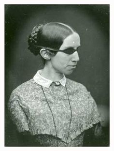 """Half a century before famed Helen Keller, the """"Original Helen Keller,"""" Laura Dewey Bridgman, became the first deaf and blind person to learn a language. Her story inspired Helen Keller's parents to have Helen be educated."""
