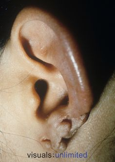 Protozoal Infections In Humans | on the human ear caused by Leishmania mexicana Trypanosome Protozoan ...