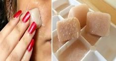 Potato lemon ice cubes for dark spots. Ice cubes filled with potato juice, lemon juice & pomegranate juice make awesome combination for rejuvenating your skin and are very effective in removing… Spots On Face, Acne Spots, Lemon Ice Cubes, Potato Juice, Pomegranate Juice, Beauty Recipe, Skin Cream, Dark Spots, Brown Spots