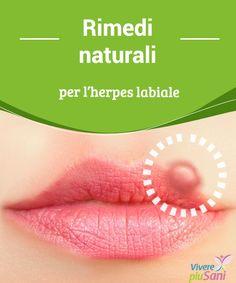 Rimedi naturali per l'herpes labiale   Giusta alimentazione e rimedi naturali per combattere l'herpes labiale