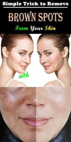 Simple Trick To Remove Brown Spots From Your Skin - Solutions For Healthy Life Brown Spots On Skin, Skin Spots, Dark Spots, Brown Skin, Health Tips For Women, Health And Beauty, Health Advice, Women Health, How To Get Rid