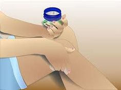 Remedies For Toenail Fungus Other uses for Vicks - Vicks Vapo Rub is known for its anti fungal properties. Vicks Vapor Rub cures are a popular non-prescription remedy. While vapor rub was originally marketed to treat respiratory illnesses a variety… Health Remedies, Home Remedies, Natural Remedies, Toenail Fungus Treatment, Chest Congestion Remedies, Headache Remedies, Vapo Rub, Uses For Vicks, Health And Wellness