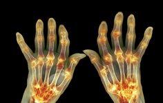 7 Surprising Arthritis Symptoms Every Woman Needs To Know  http://www.prevention.com/health/7-surprising-arthritis-symptoms?utm_source=facebook.com