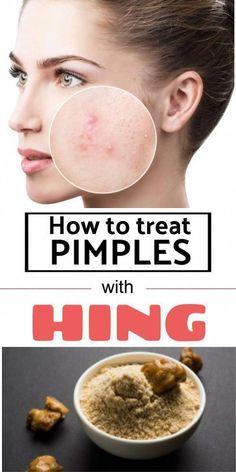 five Hassle-free Household Remedies To acquire Rid Of Skin Warts #WartsOnHands #WaysToRemoveWarts #HowToRemoveWartsAtHome #What'sGoodForWarts #NaturalRemediesForCold Foot Warts, Warts On Hands, Warts On Face, Get Rid Of Warts, How To Get Rid Of Pimples, Remove Warts, Home Remedies For Warts, Warts Remedy, Skin Bumps
