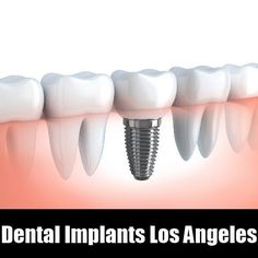 Dental Implants Los Angeles Get The affordable dental implants services at Los Angeles #dentist #dentalimplants #LAdentist